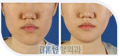 両顎手術症例4.JPG