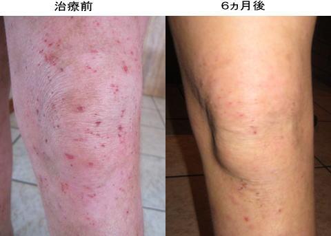 小児アトピー湿疹改善