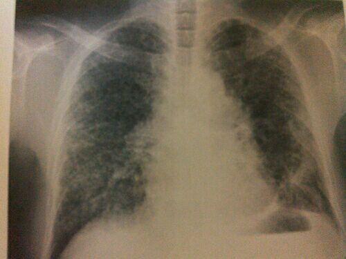肺 腺 癌 ステージ 4 ブログ