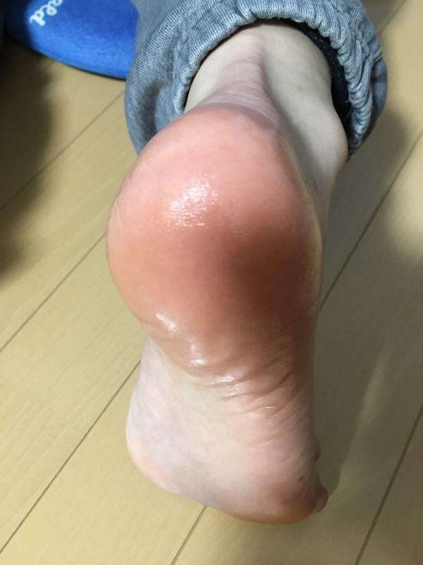 rblog-20181125223459-03.jpg