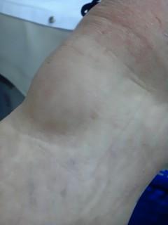 膝蓋前滑液包炎
