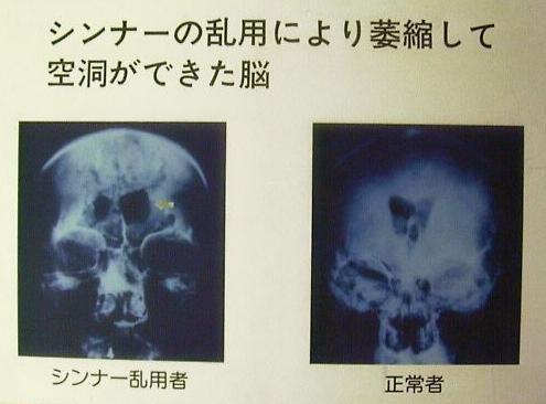 脳梗塞の後遺症 - 徳島県医師会Webサイト