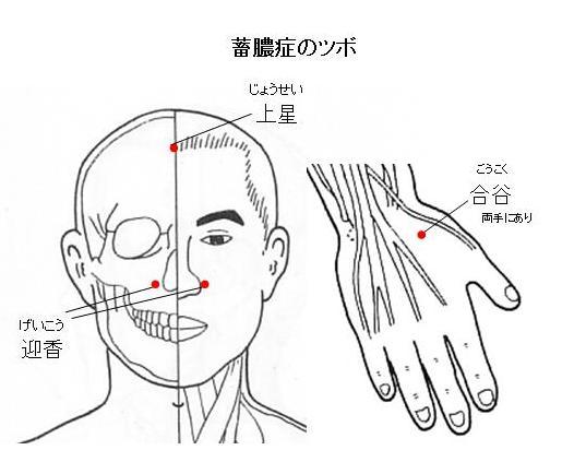 蓄膿症 膿を出す ツボ