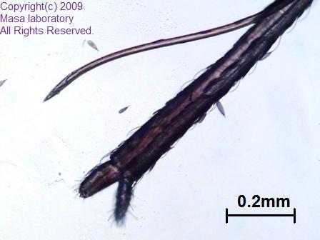 蚊の口吻 管 2009/09/14