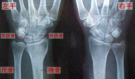 [プロローグ] 右手:小学生の時、橈骨中央部を複雑骨折(完治) 左手:二... 左橈骨遠位端骨折