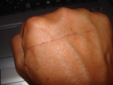 手の傷跡1