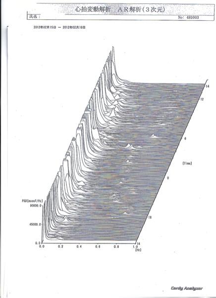 600心電図K氏20120215.jpg
