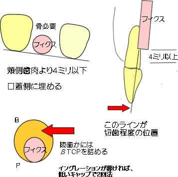 sokuji2_r2_c2.jpg