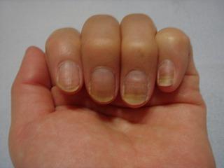 爪に 効く 栄養剤を 教えて下さい?爪が 薄くなっ …