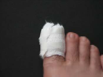 右足親指骨折.jpg