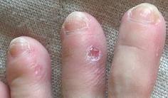 足指から拝毒中*