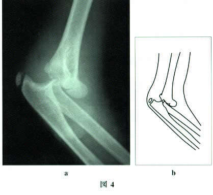 dislocation of the elbow joint3