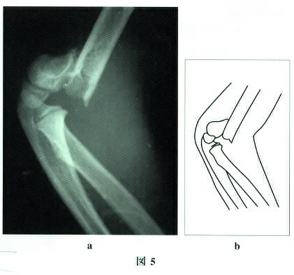 fracture of the humerus