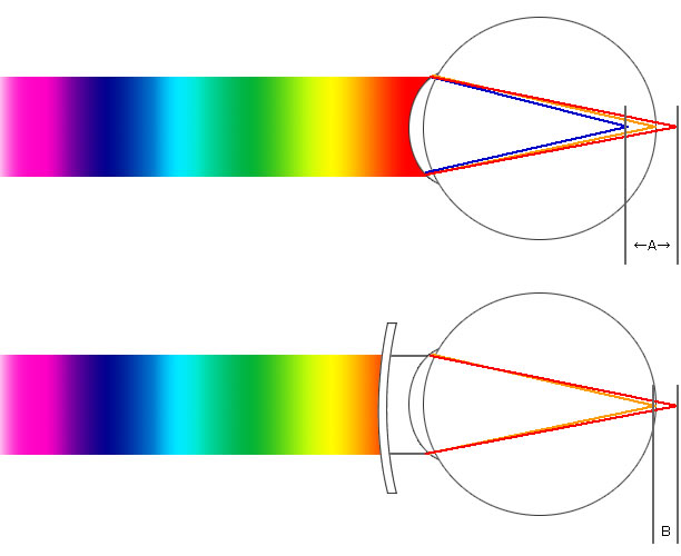 波長による眼の屈折